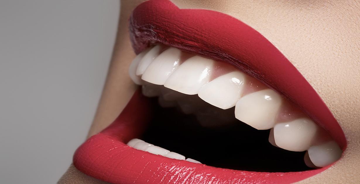 Sbiancamento dentale : strategia condivisa